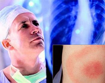 симптомы туберкулезного артрита у детей