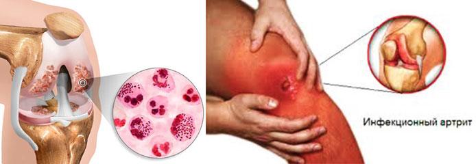 Инфекционные осложнения артрита