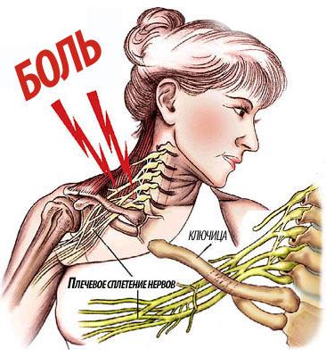лечение травмы плечевых суставов
