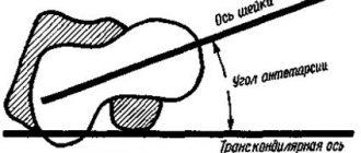 антеторсия суставов