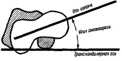 Антеторсия тазобедренных суставов физиотерапия коленного сустава в домашних условиях