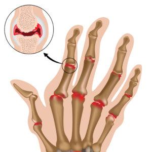Артрит - щитовидка
