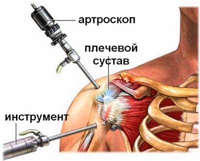 Изображение - Повреждение ротаторной манжеты плечевого сустава лечение artroskop