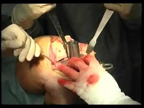 как лечить отек голеностопного сустава после эндопротезирования коленного сустава