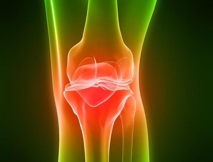 Хондроз коленного сустава