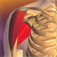 Контрактура плечевого сустава
