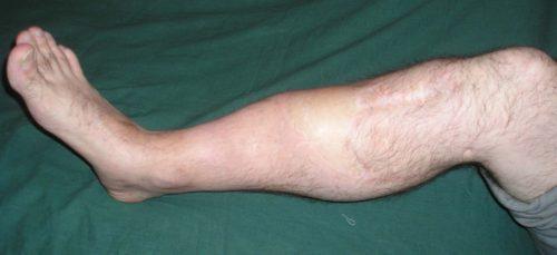 Симптомы ложного сустава на ноге