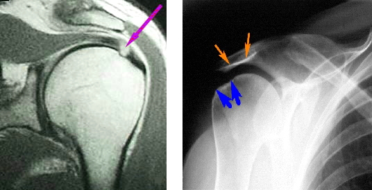 Изображение - Повреждение ротаторной манжеты плечевого сустава лечение mrt_rentgenmanjety