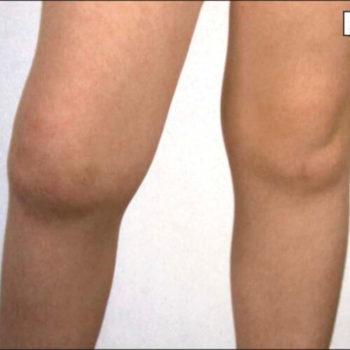 воспалительный процесс в суставах