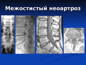 Шейно грудной остеохондроз и панические атаки