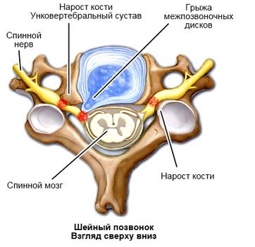 Неоартроз – признаки