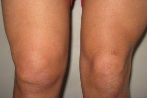 отёчность колена при хондроматозе