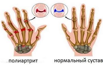 Как лечить полиартрит пальцев рук народными средствами