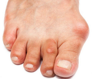 Бурсит пальцев стопы