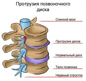 Протрузия шеи