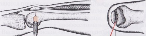 схема пункции сустава