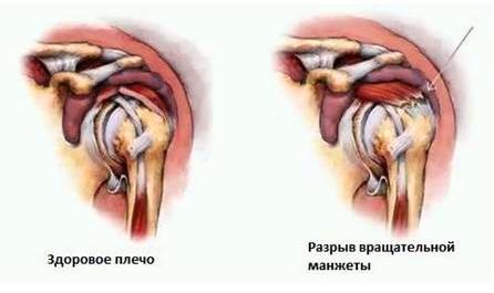 Изображение - Повреждение ротаторной манжеты плечевого сустава лечение razryvmanzety