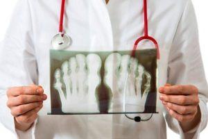 диагностика артропатии