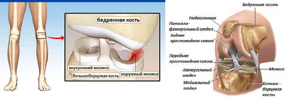 Извествление коленного сустава
