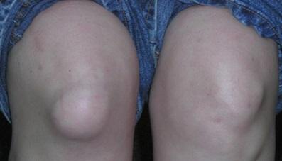 Патология коленных суставов