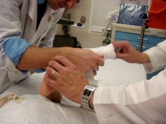 Лечение артрогрипоза