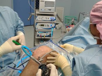 Хондропластика коленного сустава