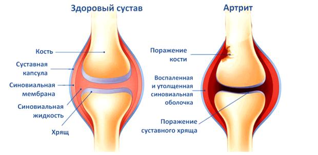 Признаки артрита