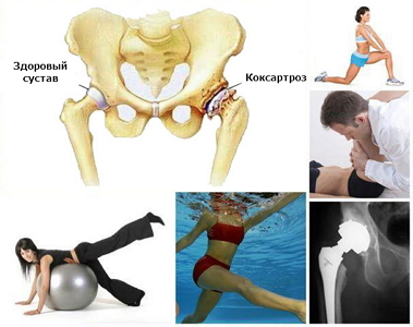 Физкультура при коксартрозе тазобедренного сустава