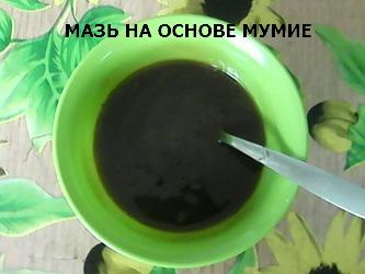 Лечение коксартроза народными средствами дома: популярные рецепты