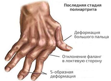 последняя стадия полиартрита