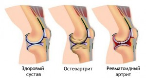 Признаки ревматоидного артрита
