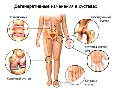 полиартроз - дегенеративные изменения в суставах
