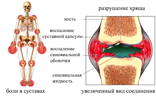 Симптоматика полиартрита