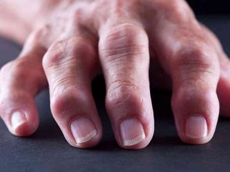 Ревмотоидный полиартрит
