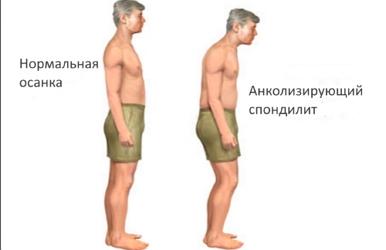 Анколизирующий спондилит