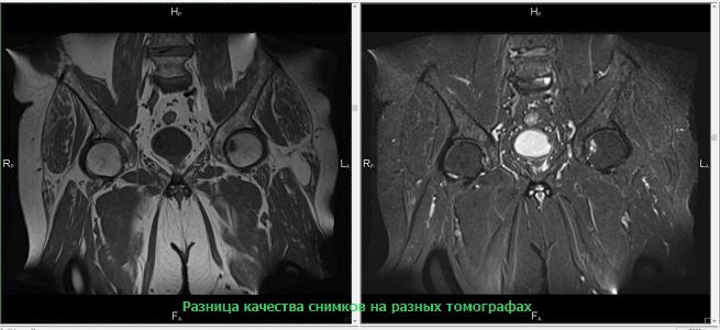 Разница качества снимков на разных томографах