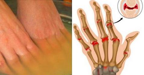 Изображение - Яблочный уксус лечение суставов отзывы vannochki-s-uksusom