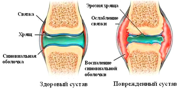 Признаки воспаления синовиальной оболочки