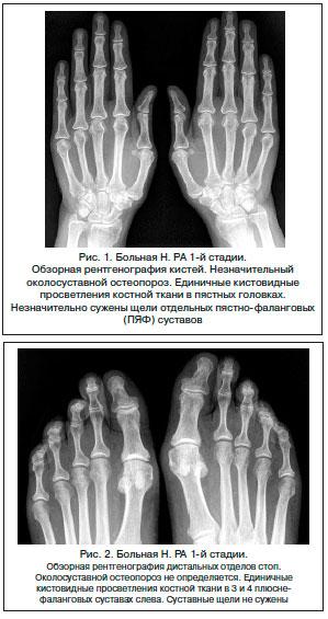 Рентгенологическая картина суставов при инфекционном артрите какие продукты полезны при ушибах суставов