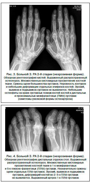 II стадия артрита