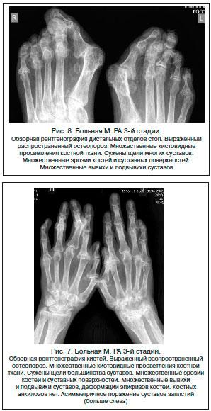 III стадия артрита