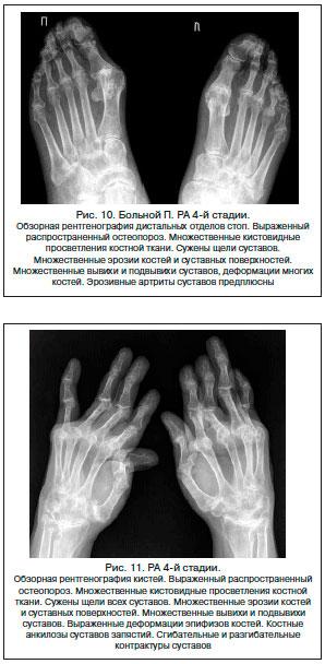IV стадия артрита