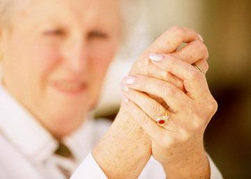 Артит кистей рук