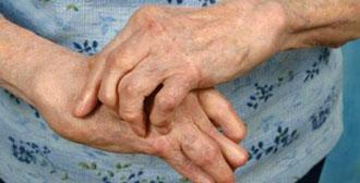 Эрозивный артрит кистей рук