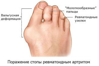 Эрозивный артрит стопы