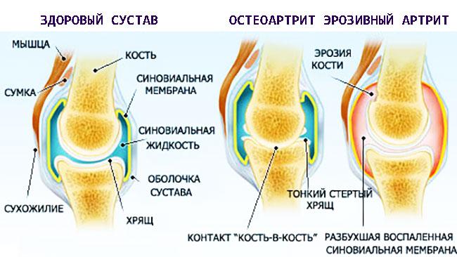 Эрозивный артрит
