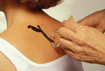 Изображение - Виктор островский как вылечить суставы girudoterapiya-plecha