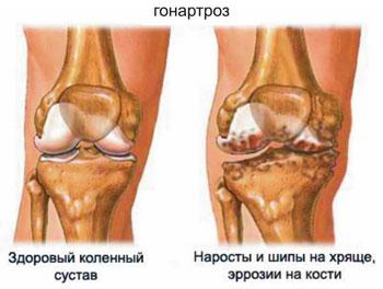 Изображение - Холодец для суставов надо пить больше воды gonartroz
