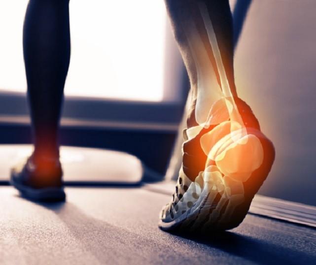Артрит стопы - причины, симптомы и лечение воспаления суставов стопы