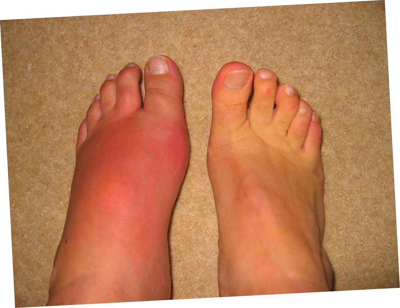 Артрит суставов профилактика боли в суставах лечение абельмановская